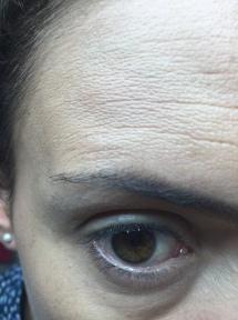 Zoom en las arrugas de la frente (pueden ver que NO se queda entre líneas...cosas que es muy normal con este tipo de bases)